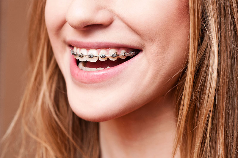 Orthodontics in San Jose